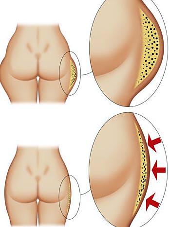 cellulite grasso cutaneo